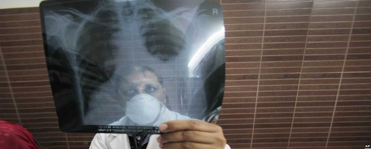 TB kills over 70,000 people every year in Pakistan